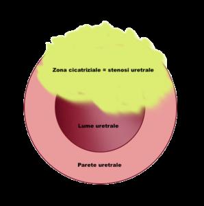 Cicatrice estesa lume uretrale - Fig. 8