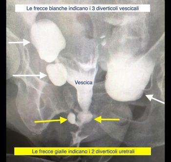 Diverticoli uretrali - Fig. 5