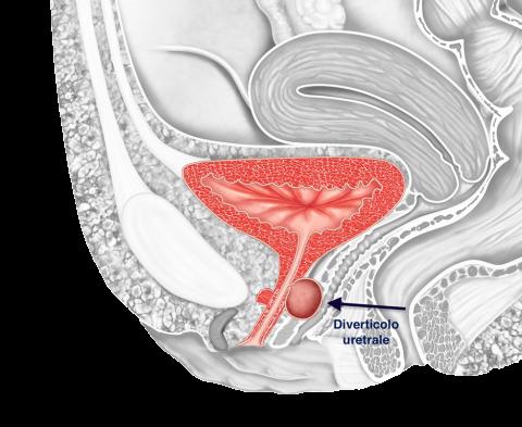 Diverticolo uretrale - Fig. 1