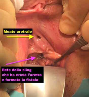Rimozione fistole uretro vaginali - Fig. 1