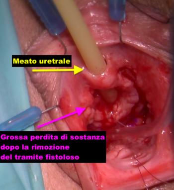 Asportazione fistole uretro vaginali Fig. 4