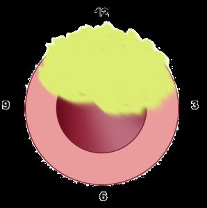 Sede stenosi uretrale - Fig. 9