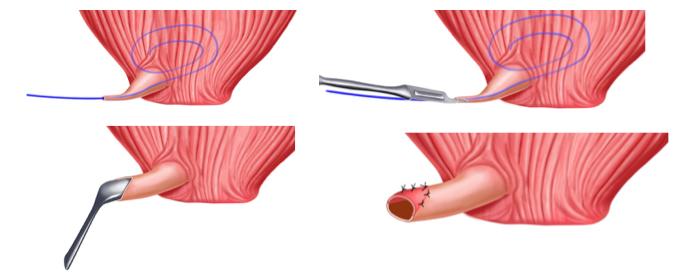 Uretroplastica dorsale stenosi distali - Fig. 12