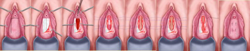Uretroplastica ventrale per stenosi medio-prossimali - Fig. 13
