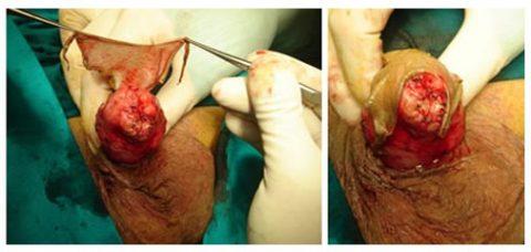 Chirurgia ricostruttiva tumore pene - Fig. 13, 14