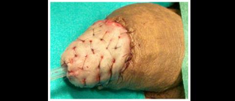 Chirurgia ricostruttiva tumore pene - Fig. 15