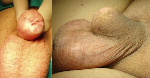 Moncone penieno dopo penectomia parziale - Fig. 3, 4