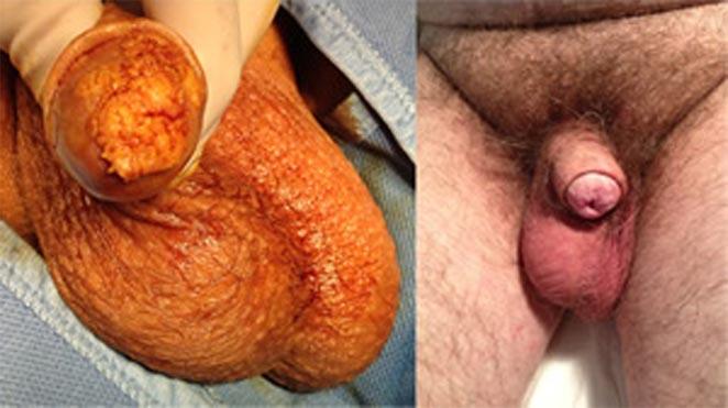Pre e Post-intervento in caso di Glansectomia e ricostruzione di Neo-glande - Fig. 40