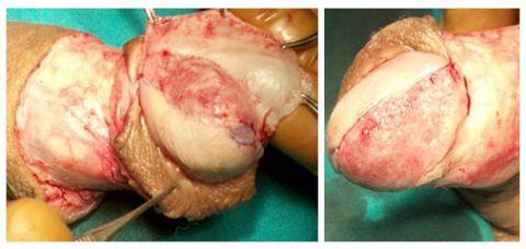 Chirurgia ricostruttiva tumore pene - Fig. 8, 9