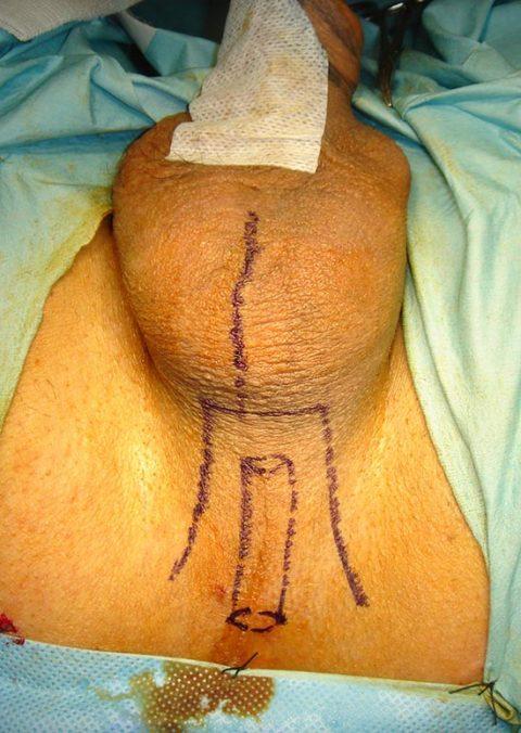 Rimozione stent uretrale - Fig. 3