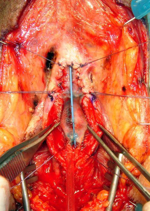 Rimozione stent uretrale - Fig. 5