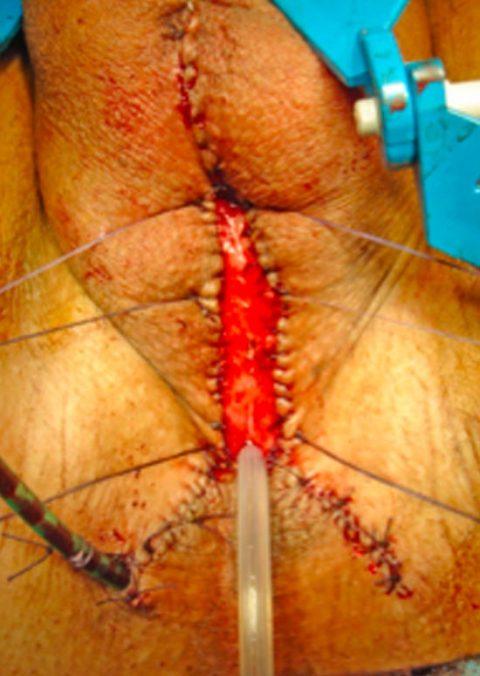 Rimozione stent uretrale - Fig. 7