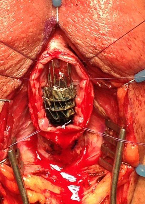 Rimozione stent uretrale - Fig. 8