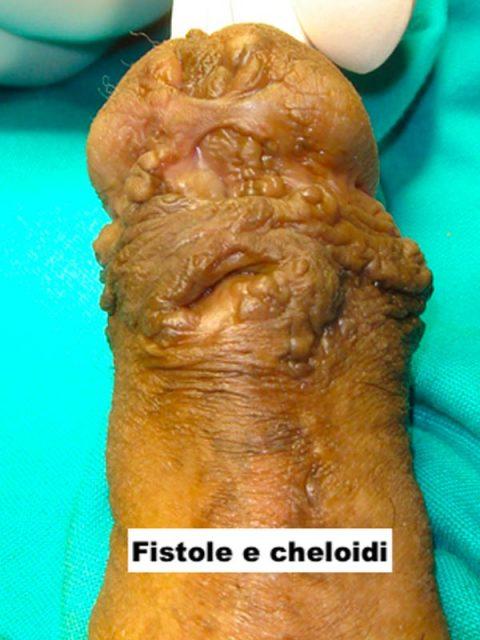 Fistole e cheloidi ipospadia - Fig. 10
