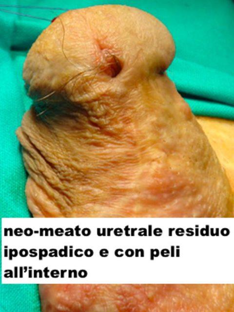 Meato uretrale residuo ipospadico - Fig. 11