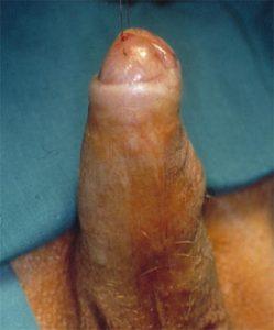 Lichen sclerosus - Fig. 1