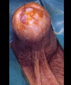 Lichen sclerosus - Fig. 2