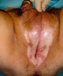 Lichen sclerosus - Fig. 6