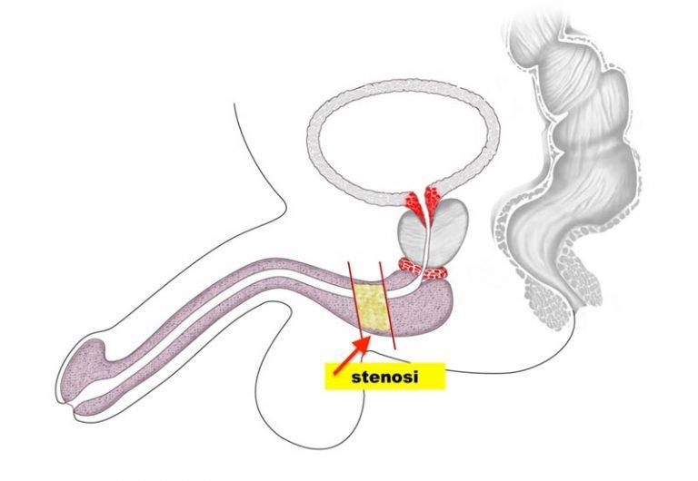 Stenosi uretrale - Fig. 1