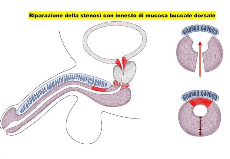 Stenosi uretrale - Fig. 2