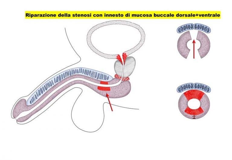 Stenosi uretrale - Fig. 4