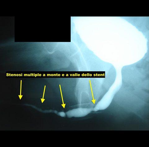 Rimozione stent uretrale - Fig. 2